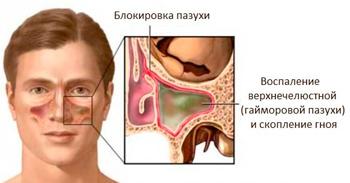 folk remedies for antritis