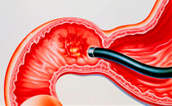 gastric and duodenal ulcer