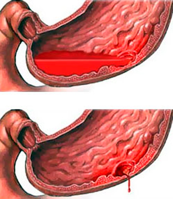 exacerbation of gastric and duodenal ulcers