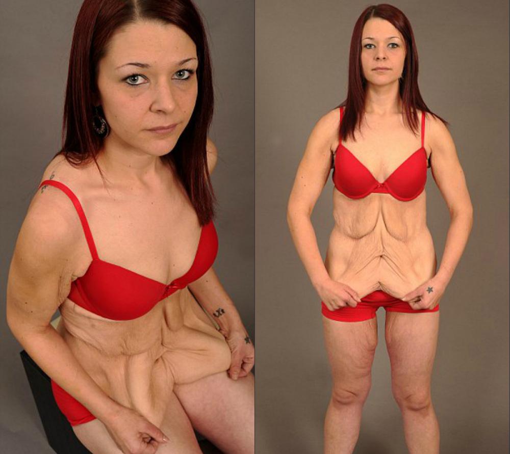 Как Сильно Похудеет Грудь. Теряем килограммы, сохраняем грудь. Возможно? Возможно!
