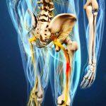Как болит седалищный нерв: симптомы и причины. Что делать, если болит седалищный нерв: методы лечения