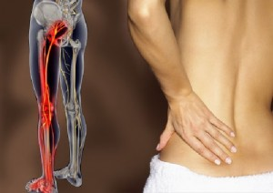 Что делать если болит седалищный нерв на попе лечение в домашних